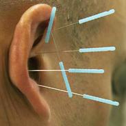 Die dünnen Nadeln animieren den Körper zur Besserung