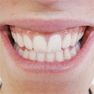 Die Zähne sind empfindlich, umso schlimmer also, wenn es nachts knirscht